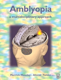 Cover image for Amblyopia