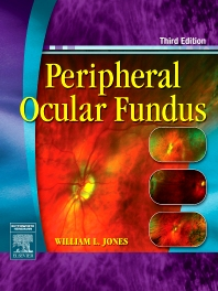 Peripheral Ocular Fundus - 3rd Edition - ISBN: 9780750675055, 9780702038945