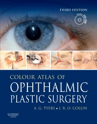 Cover image for Colour Atlas of Ophthalmic Plastic Surgery with DVD