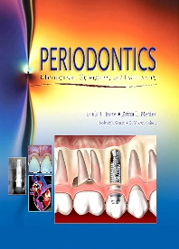 Cover image for Periodontics