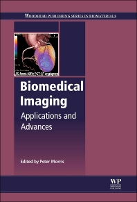 Biomedical Imaging - 1st Edition - ISBN: 9780857091277, 9780857097477