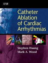 Cover image for Catheter Ablation of Cardiac Arrhythmias