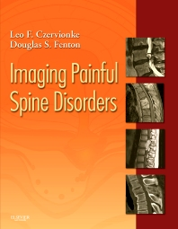 Cover image for Imaging Painful Spine Disorders