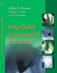 Image-Guided Musculoskeletal Intervention - 1st Edition - ISBN: 9781416029052