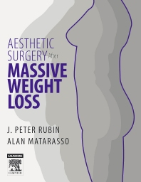 Cover image for Aesthetic Surgery After Massive Weight Loss