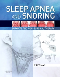 Sleep Apnea and Snoring - 1st Edition - ISBN: 9781416031123, 9781437710809