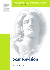 Book Series: Procedures in Cosmetic Dermatology Series: Scar Revision