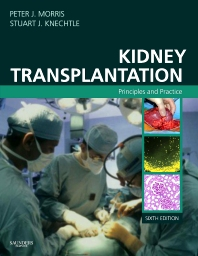 Kidney Transplantation - 6th Edition - ISBN: 9781416033431
