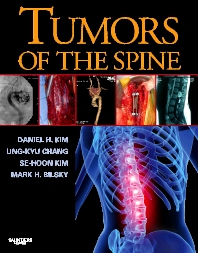 Cover image for Tumors of the Spine