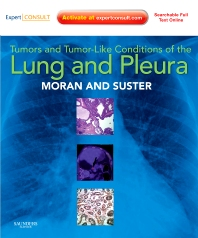 Cover image for Tumors and Tumor-like Conditions of the Lung and Pleura