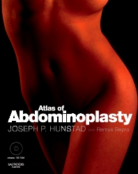 Cover image for Atlas of Abdominoplasty