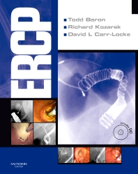 ERCP - 1st Edition - ISBN: 9781416042716