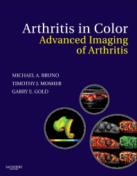 Cover image for Arthritis in Color