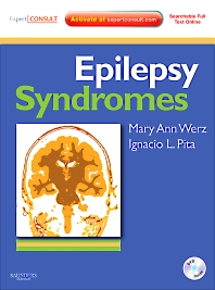 Cover image for Epilepsy Syndromes