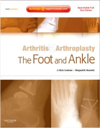 Arthritis and Arthroplasty: The Foot and Ankle