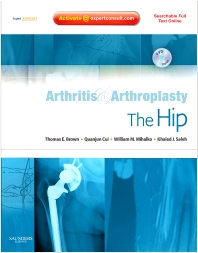 Arthritis and Arthroplasty: The Hip - 1st Edition - ISBN: 9781416049739, 9780323313780