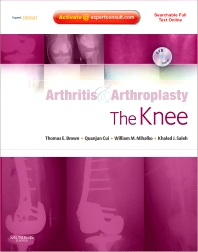 Arthritis and Arthroplasty: The Knee - 1st Edition - ISBN: 9780323313797
