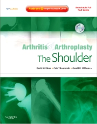 Arthritis and Arthroplasty: The Shoulder