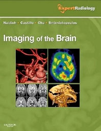 Cover image for Imaging of the Brain