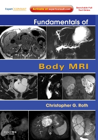 Fundamentals of Body MRI - 1st Edition - ISBN: 9781416051831, 9780323248686