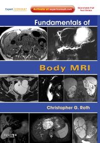 Cover image for Fundamentals of Body MRI