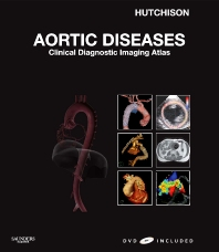 Cover image for Aortic Diseases