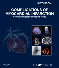 Complications of Myocardial Infarction - 1st Edition - ISBN: 9781437721522