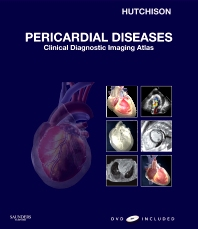 Cover image for Pericardial Diseases