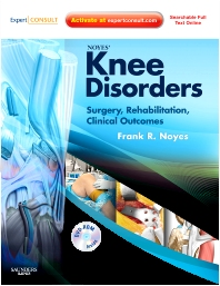 Noyes' Knee Disorders: Surgery, Rehabilitation, Clinical Outcomes - 1st Edition - ISBN: 9781455708772