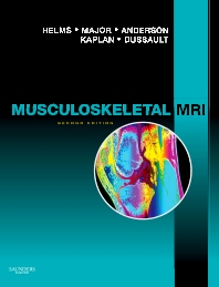 Cover image for Musculoskeletal MRI