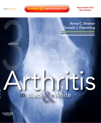 Cover image for Arthritis in Black and White