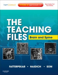 The Teaching Files: Brain and Spine - 1st Edition - ISBN: 9781416056201, 9781455733637