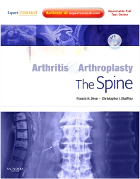 Arthritis and Arthroplasty: The Spine - 1st Edition - ISBN: 9781455708819