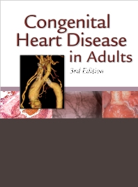 Cover image for Congenital Heart Disease in Adults