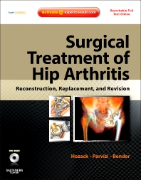 Surgical Treatment of Hip Arthritis: Reconstruction, Replacement, and Revision - 1st Edition - ISBN: 9781416058984