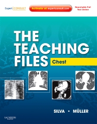 Cover image for The Teaching Files: Chest