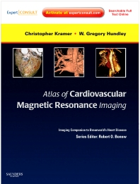 Atlas of Cardiovascular Magnetic Resonance Imaging: Expert Consult - Online and Print