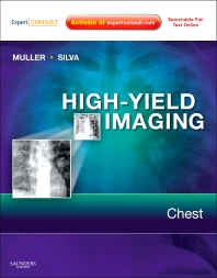 Cover image for High-Yield Imaging: Chest