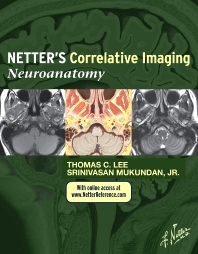 Cover image for Netter's Correlative Imaging: Neuroanatomy