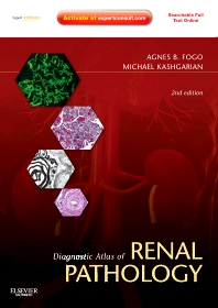 Diagnostic Atlas of Renal Pathology, 2nd Edition,Agnes Fogo,Michael Kashgarian,ISBN9781437704273