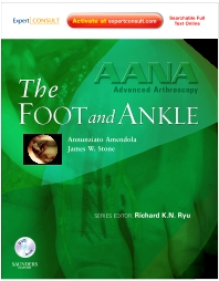 Cover image for AANA Advanced Arthroscopy: The Foot and Ankle