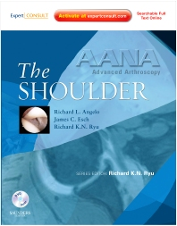 AANA Advanced Arthroscopy: The Shoulder