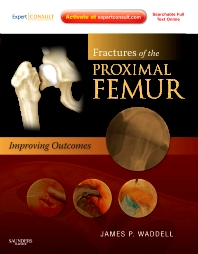 Cover image for Fractures of the Proximal Femur: Improving Outcomes