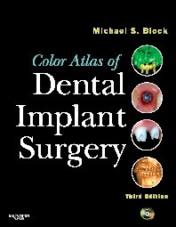 Color Atlas of Dental Implant Surgery - 3rd Edition - ISBN: 9781455736805