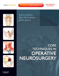 Cover image for Core Techniques in Operative Neurosurgery