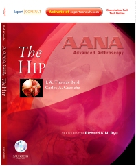 AANA Advanced Arthroscopy: The Hip - 1st Edition - ISBN: 9781437709117, 9781455710614