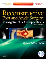 Reconstructive Foot and Ankle Surgery: Management of Complications  - 2nd Edition - ISBN: 9781437709230, 9781437723212