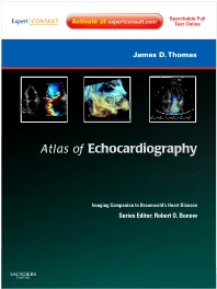Atlas of Echocardiography: Imaging Companion to Braunwald's Heart Disease