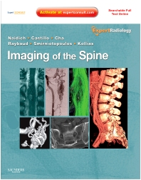 Cover image for Imaging of the Spine