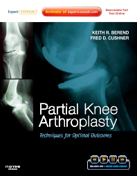 Cover image for Partial Knee Arthroplasty